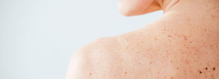 melanoma benigno, melanoma sintomas, melanoma subungueal, tipos de melanoma, melanoma ocular, melano